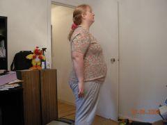 8 pounds down since surgery
