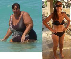 Claudia Before After 06 18 2015