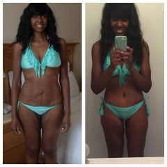 Before and after lower body lift 2015